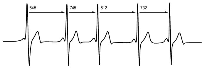 frecuencia-cardiaca-pulsometros