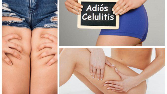 eliminar-la-celulitis